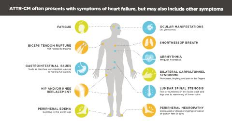 An Unfamiliar, Rare Disease Associated with Heart Failure ...